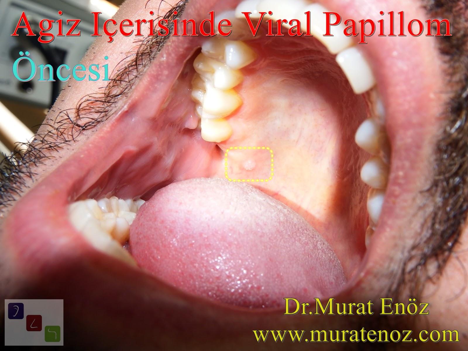 papilloma cauterization fórum)