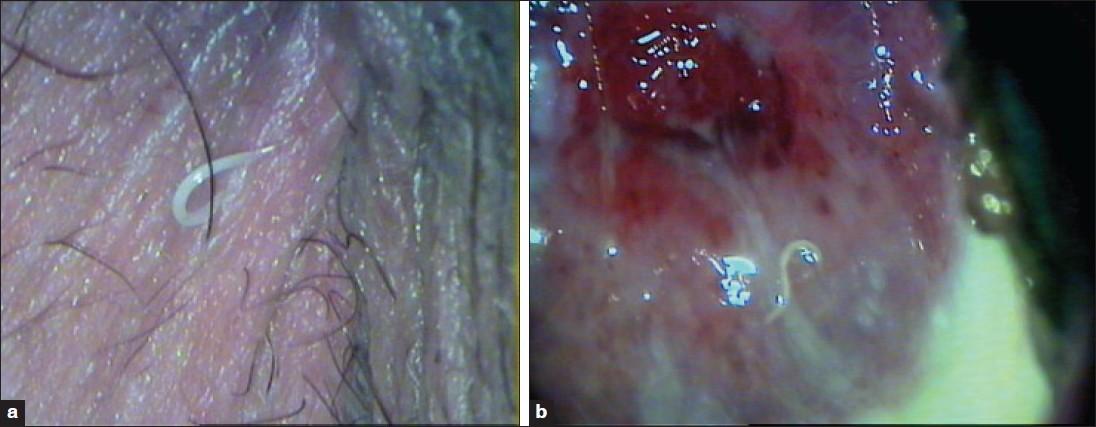 Vulvovaginitis és pinworms. Homoktövis gyertyák pinworms