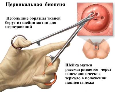 emberi papillomavírus mirigy