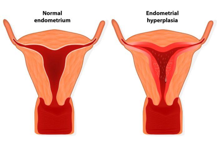 endometrium rák ein)