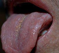 Papilloma vírus szájtünetei