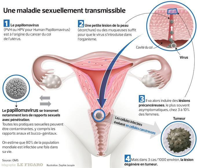 hpv vaccin femme
