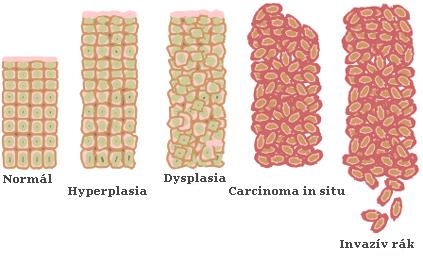 Méhrák, endometriális rák