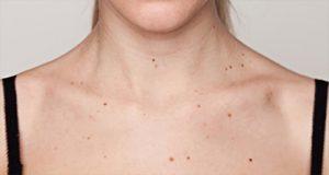 Miért alakulnak ki a papillomák a nyakon, és hogyan gyógyíthatók? - Melanóma