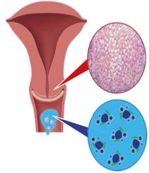 HPV: a méhnyakrák, és a hegyes függöly a nemi szerveken – Biztonsámaniactattoo.hu
