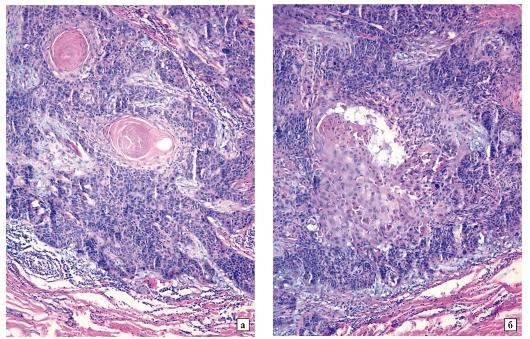 papilloma mikropreparáció