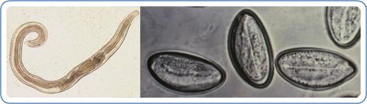 pinworm enterobius vermicularis)