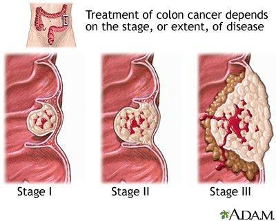 Rectosigmoid rák jelentése. A colorectalis rák szakaszai
