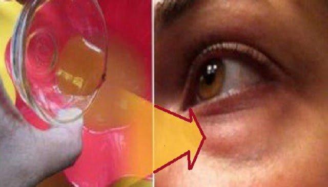 távolítsa el a szem körüli papillómákat kukorica vagy talpi szemölcs