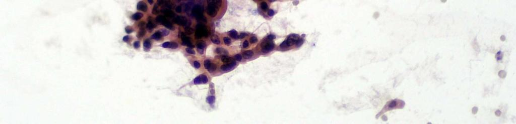 papilláris urotheliális meghatározás
