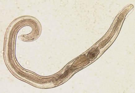 enterobius vermicularis lárvák)