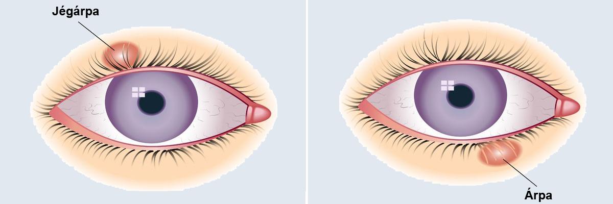 lehetséges eltávolítani a papillómát a szem alól