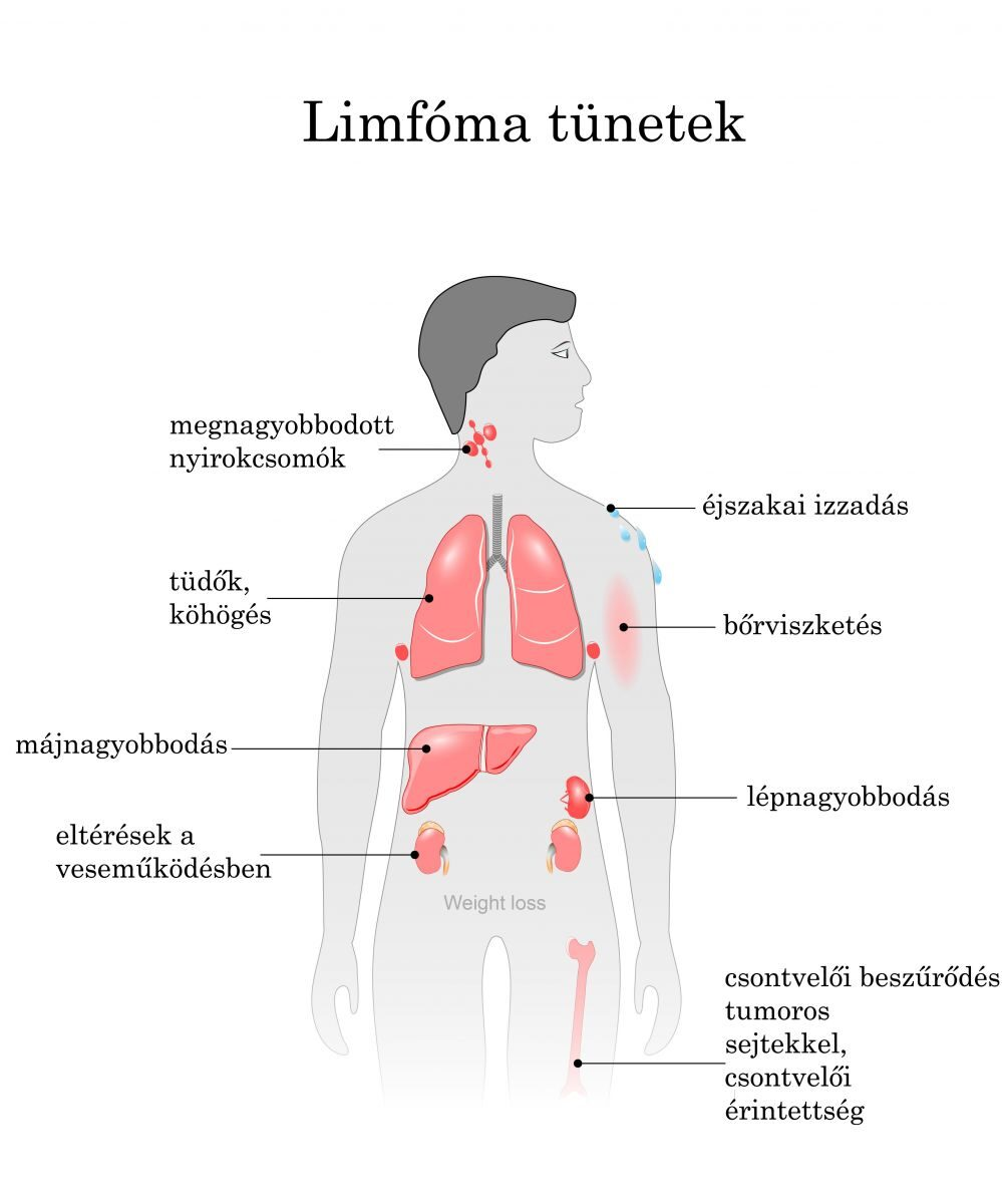 hasi limfóma rák)