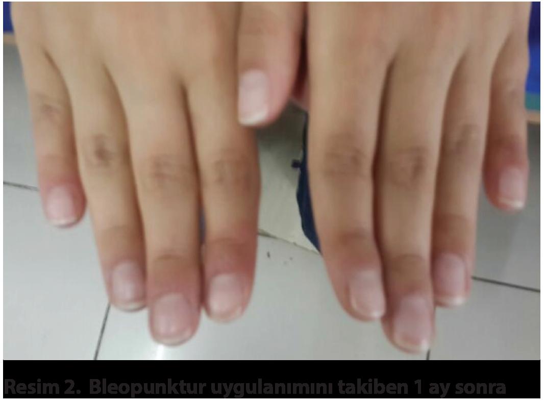 Streptocid kenőcs az akne felülvizsgálatából