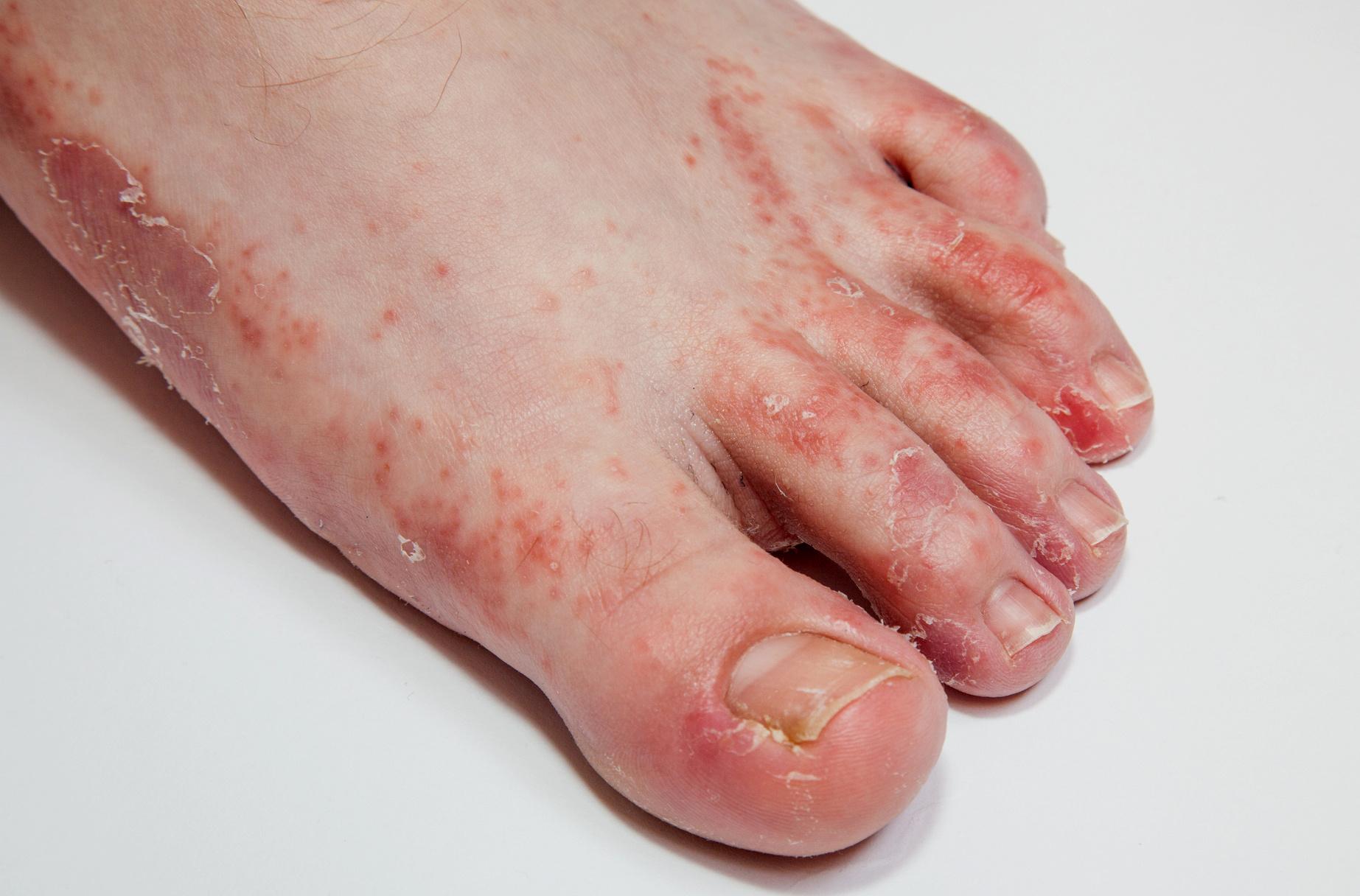 5 kérdés a lábgombáról