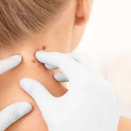 a nyaki papilloma kezelése