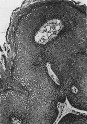 papillomavírus mst vagy sem