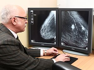 emlőrák ultrahang