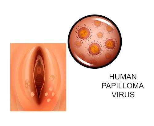 Giardia nell uomo sintomi -