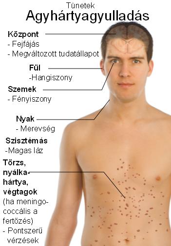 paraziták okozta herpesz