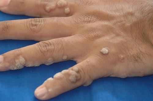kenőcsök a papilloma vírusfertőzés áttekintésére a legjobb féreghajtó gyógyszerek az emberek számára