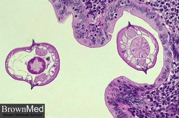 enterobius vermicularis la gi)