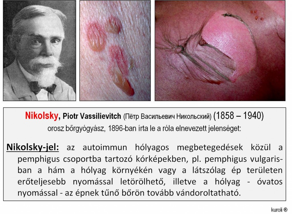 Jegyzetek medikusoknak/Bőrgyógyászat/HPV és Pox vírusok okozta betegségek
