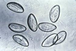 enterobius vermicularis reino)