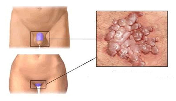 nemi szemölcsök és polipok kezelése
