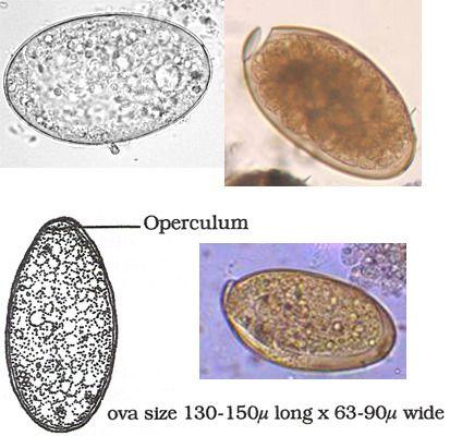schistosomiasis betegség