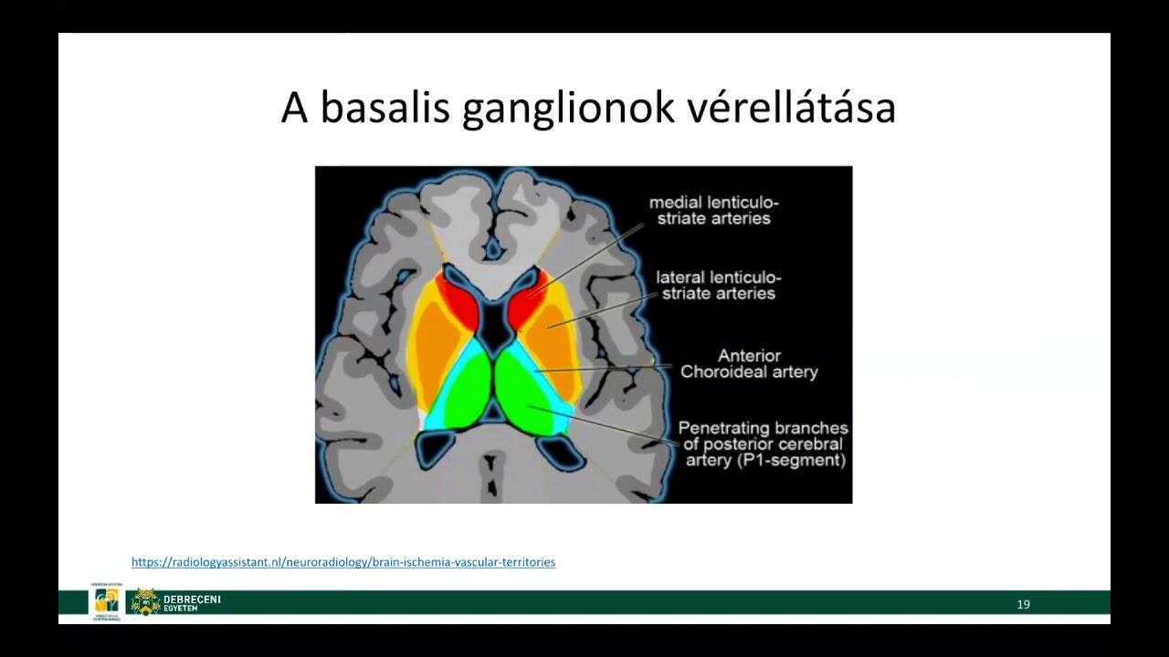hogyan lehet megszabadulni az agy helmintusaitól