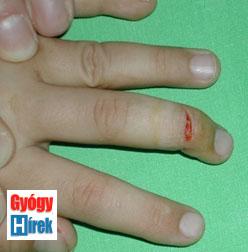 repedések az ujjak kezelési fóruma között szemölcsök nőknél a végbélnyílás kezelésében