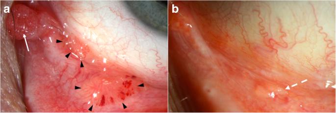 a féreggyógyszer szedése után parazita hengeres férgek