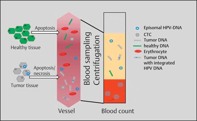 hpv assoziierte tumor)