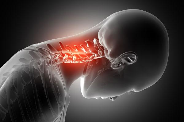 platyhelmints gerinctelen nyak