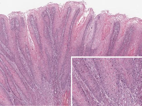 condyloma acuminata nyak