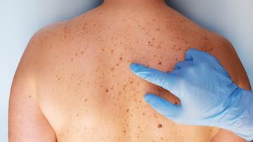 A bőrünkön érezzük … amit tudni érdemes a bőrrákról