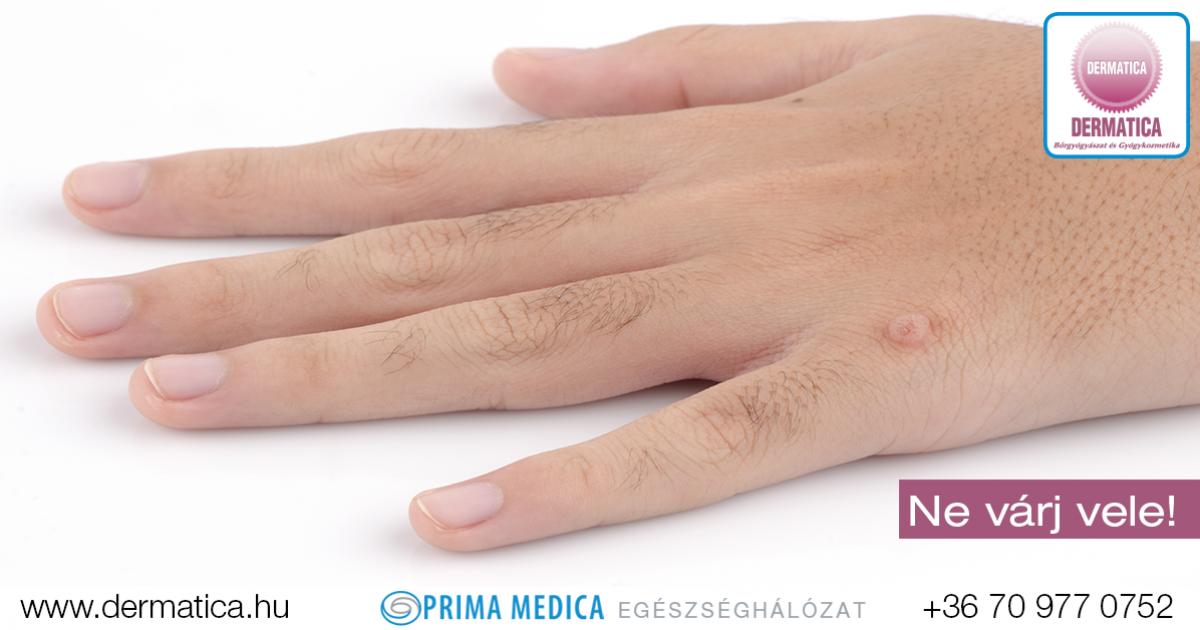 hpv kezelés medscape amely enterobiasis vagy oxyuriasis
