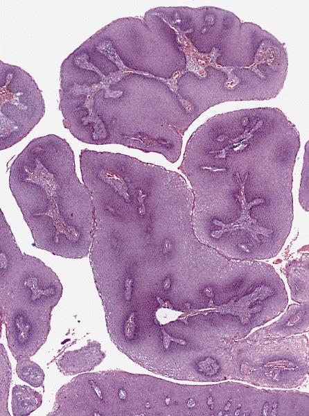 húgycső condyloma tünete hpv módon erkennen