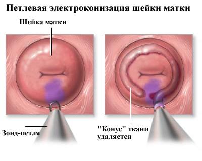 ha a nemi szemölcsöket nem távolítják el)