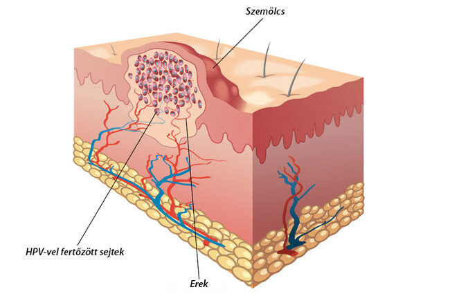 a papillomavírus gyógyulásának esélye
