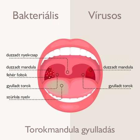 mandulagyulladás kezelése papilloma)