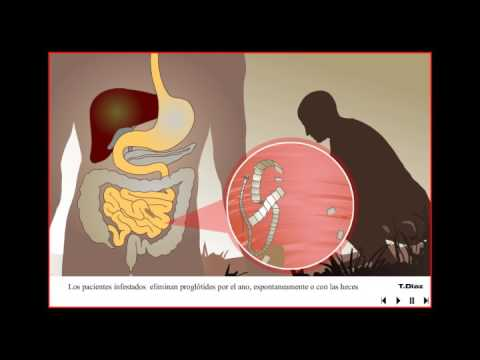 Giardiasis földrajzi eloszlása - Férgek és kerekférgek kezelése, Bélfergesseg tünetei embernel
