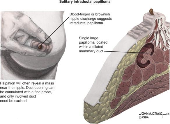 intraductalis papilloma nincs csomó