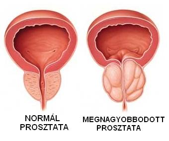 prosztatarák fiatal tünetekben)