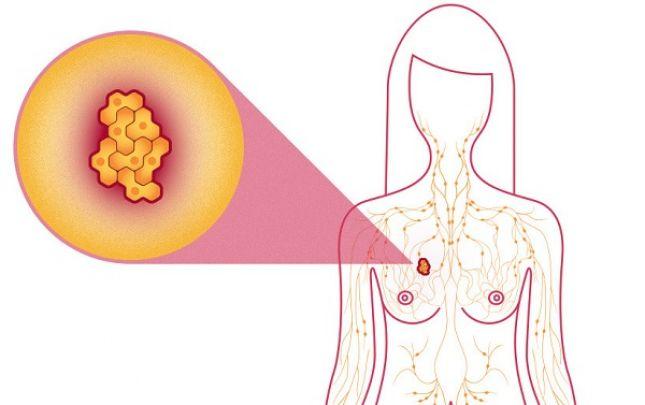 jóindulatú rák kör