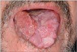 Papilloma torok vírus tünetei