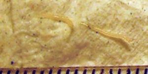 Pinworms mennyit kell kezelni Pinworms mennyit kell kezelni