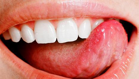 szájüregi rák életkora