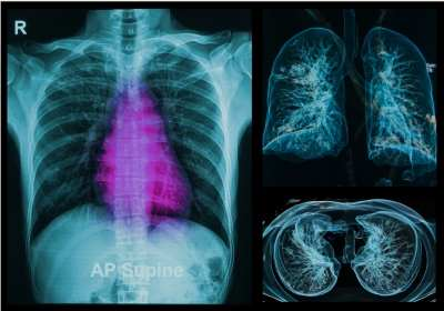 rosszindulatú tüdőrák